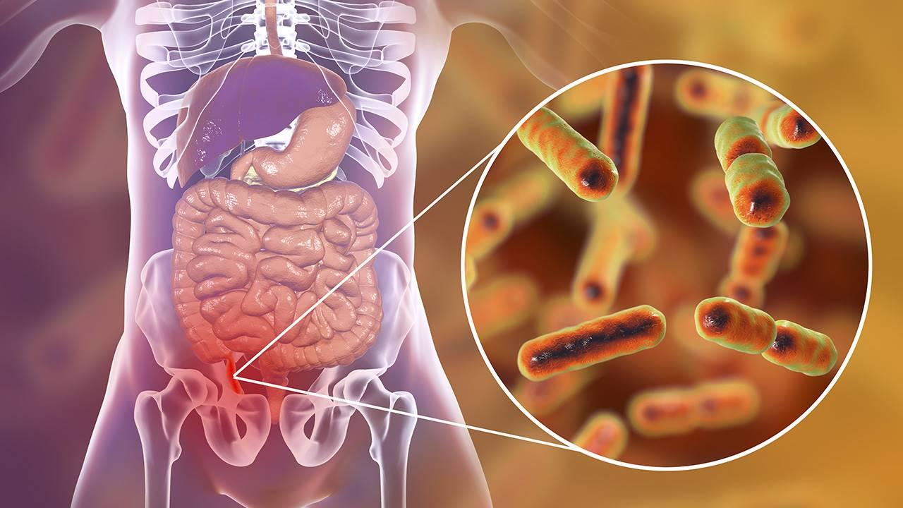 Apendicitis: qué es, síntomas y tratamiento