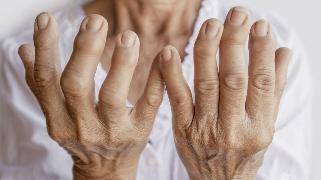 Artritis: qué es, síntomas, tratamiento y diagnóstico