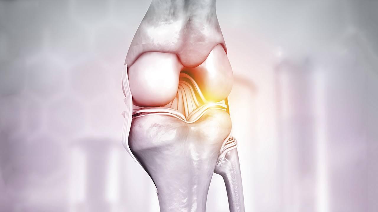 artrosis kezelés 2020