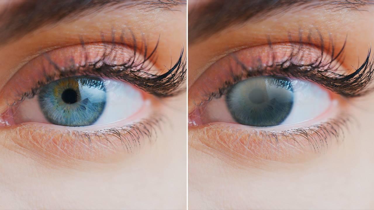 Ojos con y sin cataratas. Una de las causas que impiden tener una buena visión. © Sabervivir