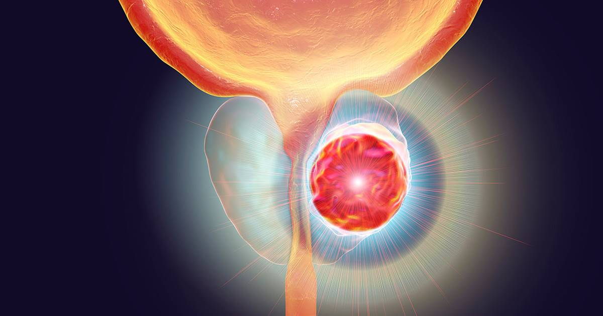 Hiperplasia benigna de próstata - Wikipedia, la enciclopedia libre