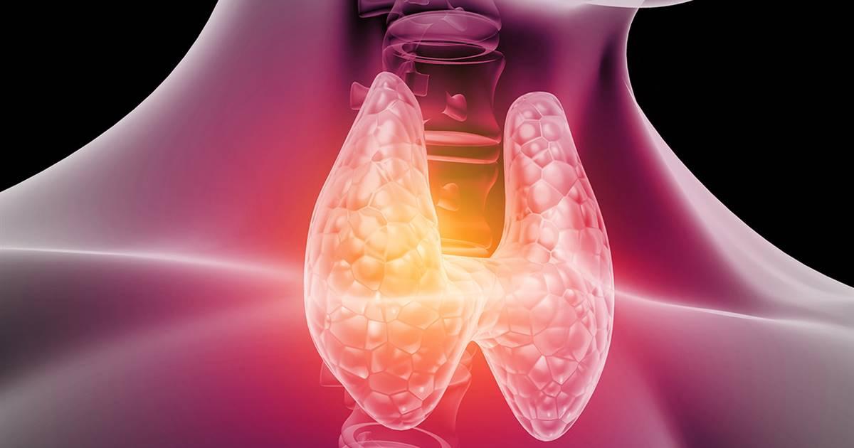 Qué es el hipotiroidismo | Síntomas y Tratamiento